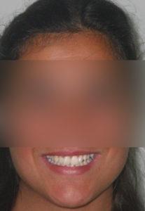 frontale prima ortodonzia