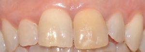 Sbiancamento endodontico