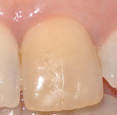 sbaincamento endodontico quadrato