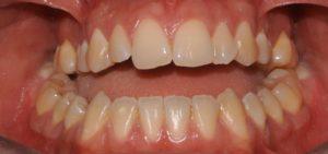 frontale pre trattamento ortodontico chirurgico