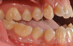 laterale destra prima trattamento ortodontico chirurgico