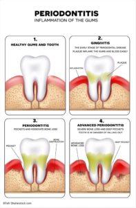 parodontite piorrea sondaggio