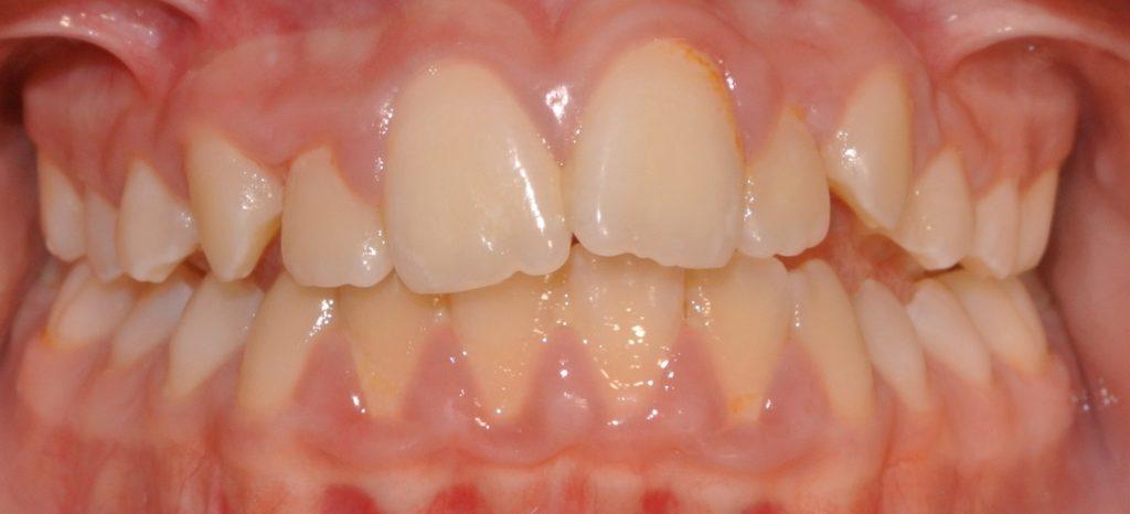 Foto denti storti